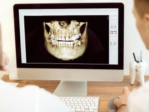 3D orthodontic assessments on screen for development of treatment