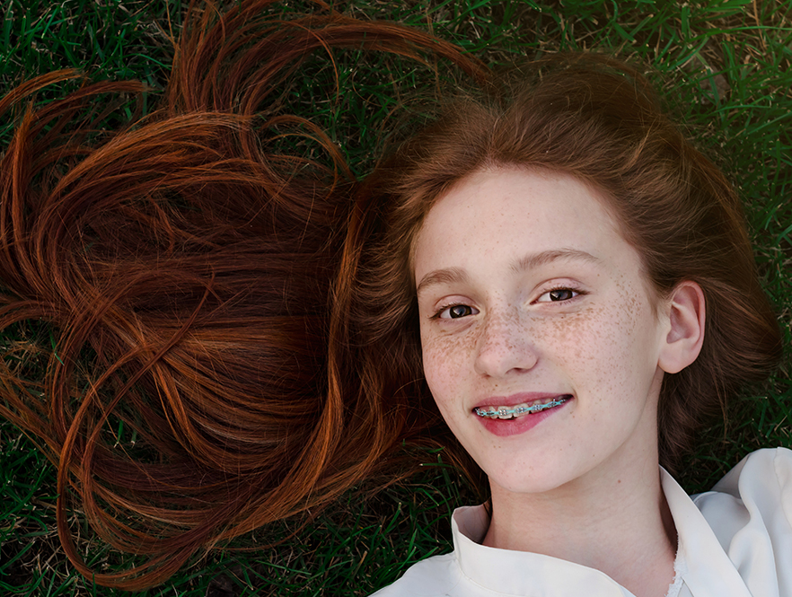 red haired girl has dual arch wire braces treatment