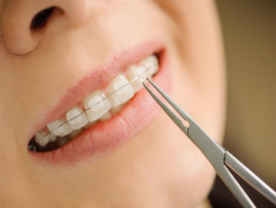 ceramic braces reviews, woman wearing braces