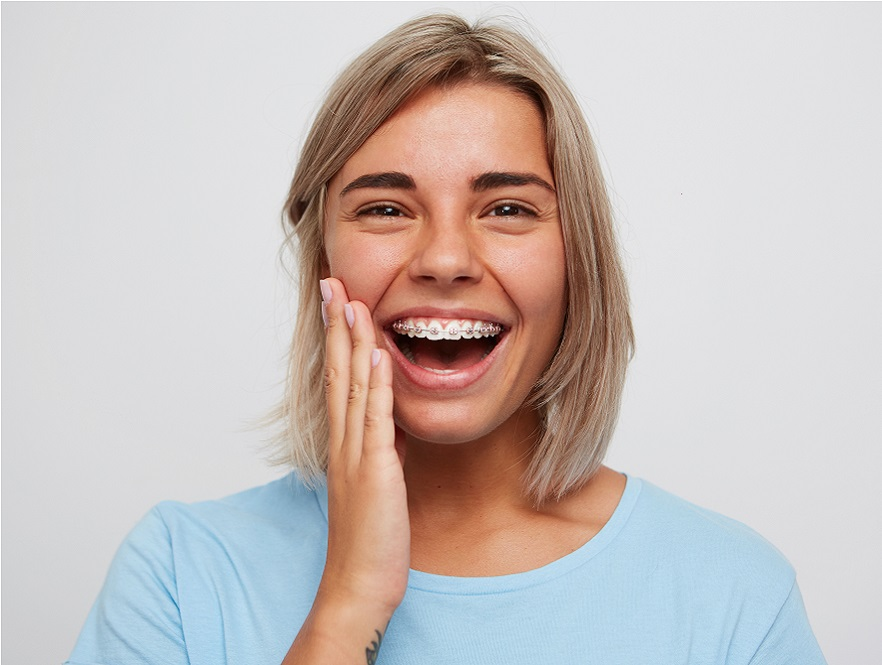 Self ligating ceramic braces and smiling blonde woman