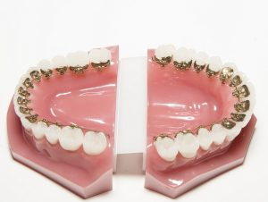 Invisible lingual braces cost in open mouth display