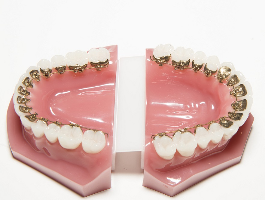 Profile Orthodonticsbraces Archives - Profile Orthodontics