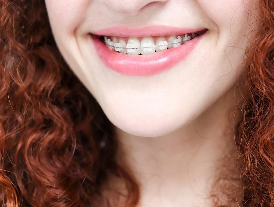 Woman wearing ceramic braces in Perth.
