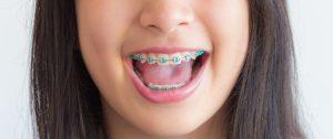 Perth Orthodontics Western Australia